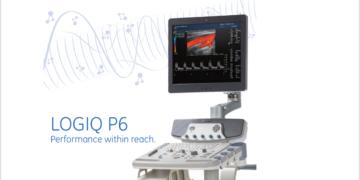 Ultrazëri